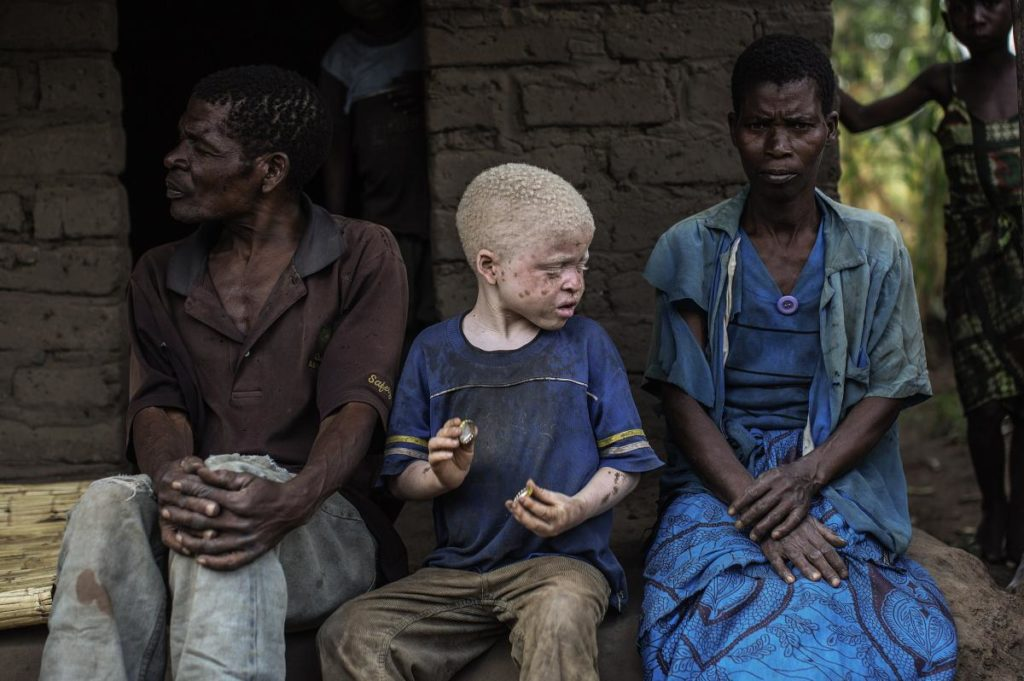 Boy with albinism sitting down