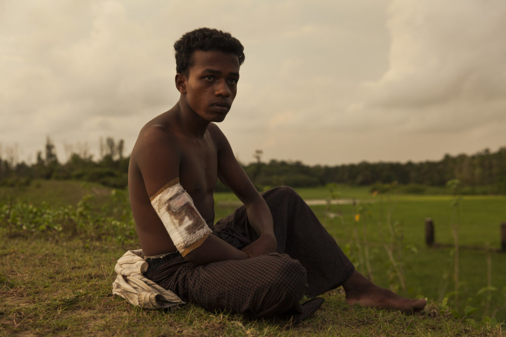 Ahammed Ullah is 20 years old from Saitaburuikka, Maungdaw he was shot in the arm when the Burmese military attacked his village. More than 270,000 Rohingya refugees have fled across the border from Rakhine State, Myanmar, into Bangladesh since 25 August. As many as 80 per cent of them are women and children. Many more children in need of support and protection remain in the areas of northern Rakhine State that have been wracked by violence.