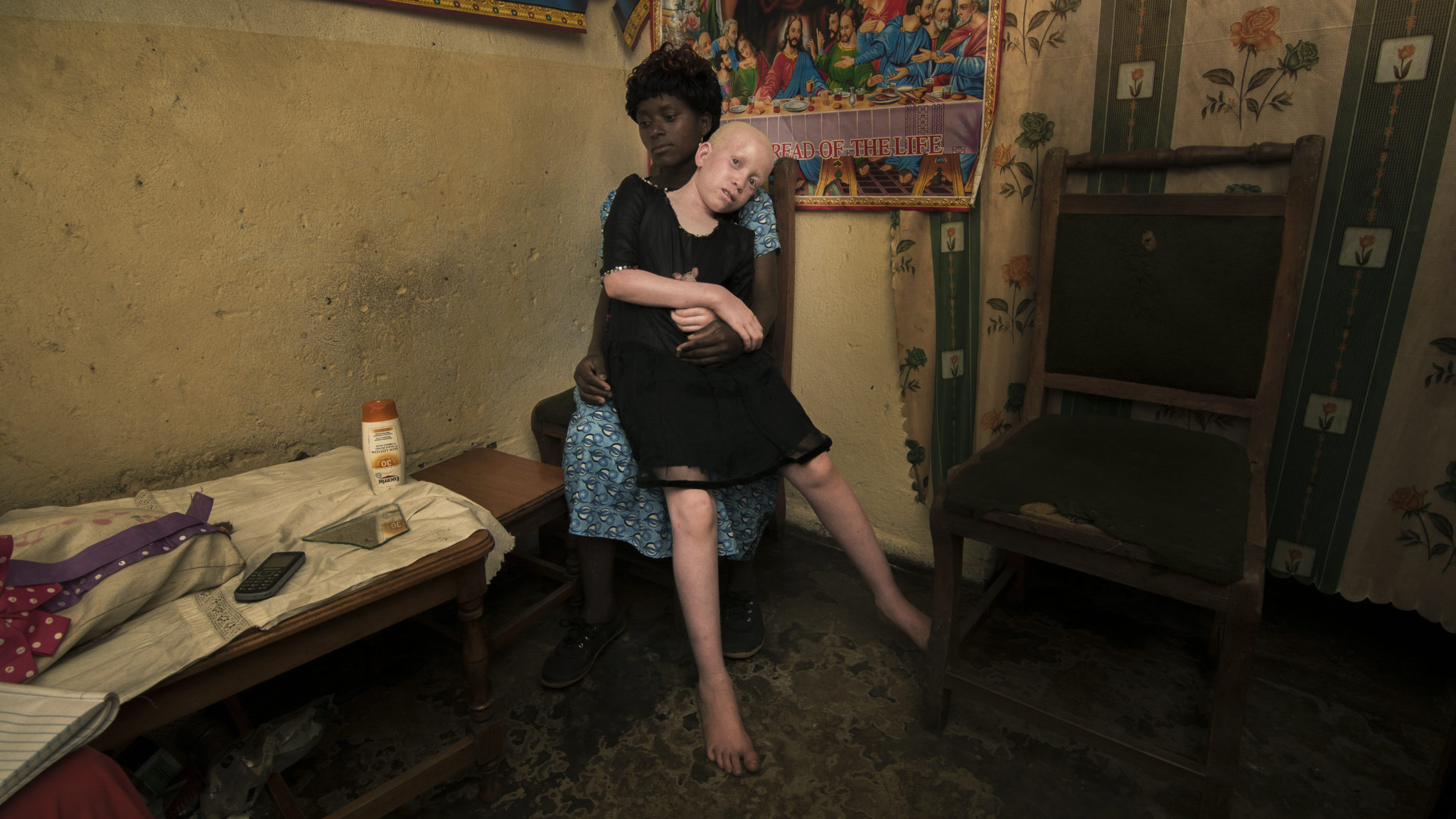 Malawi: Impunity fuels killings of people with albinism for their body parts